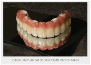 Protezavimas ar implantavimas - kas geriau?