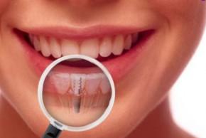 Dantu implantavimas kaune